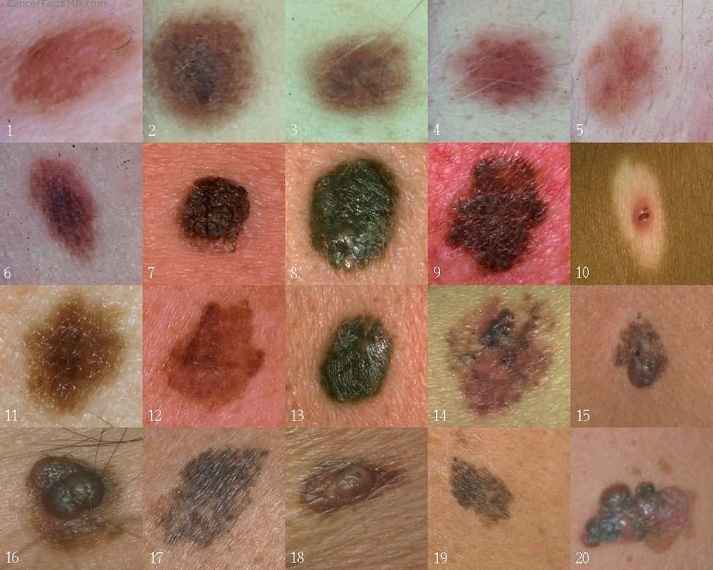 Examples of skin cancer. Melanoma is the most common form of skin cancer.