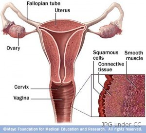 vaginal-cancer
