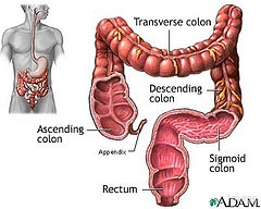 Colon cancer prevention
