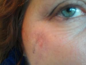 Melanoma - Skin Cancer